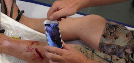 herida corta